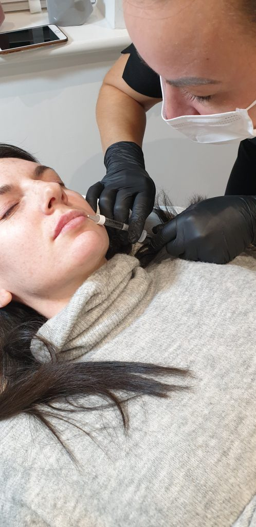 During the process of getting lip filler