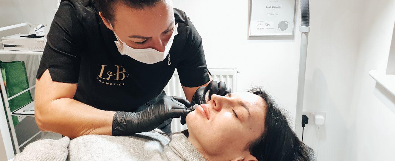 Getting Lip Filler