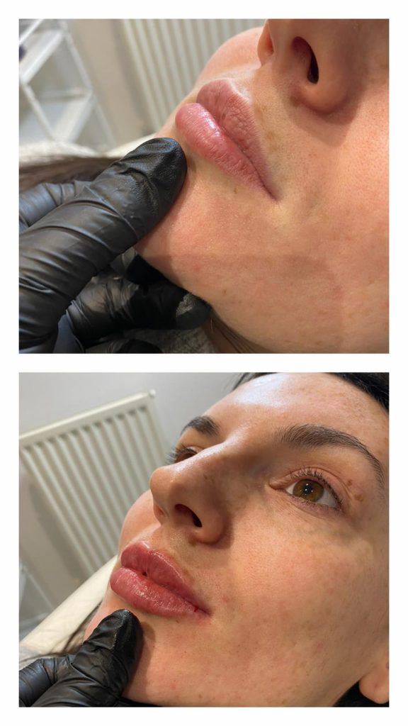 Picture showing lips before filler and lips after filler